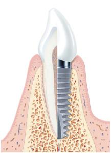 Schematische Darstellung eines Implantats der Fa. Xive