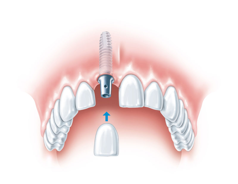 Schematische Darstellung einer implantatverankerten Krone
