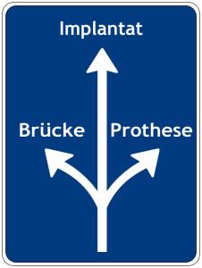 Praxix Böckelman - Brücke, Prothese oder Implantat?